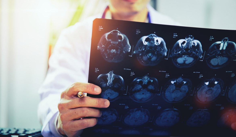 Prześwietlenie głowy - 9-Me-BC jako środek na regenerację mózgu i układu dopaminy