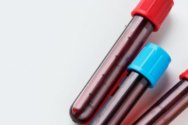Badanie homocysteiny z krwi - Homocysteina a depresja